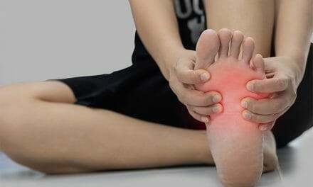 Plantar Fasciitis Injury Prevention